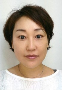 東京美容鍼